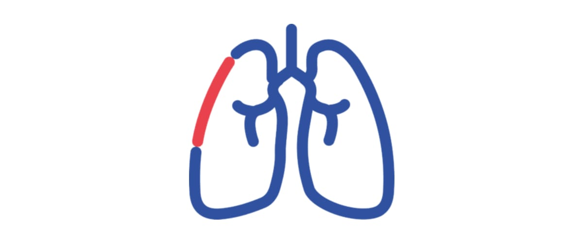 Pulmonale